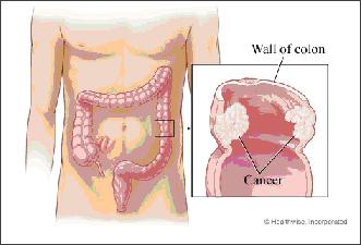 Sarawak Hospice Society - Colorectal Cancer